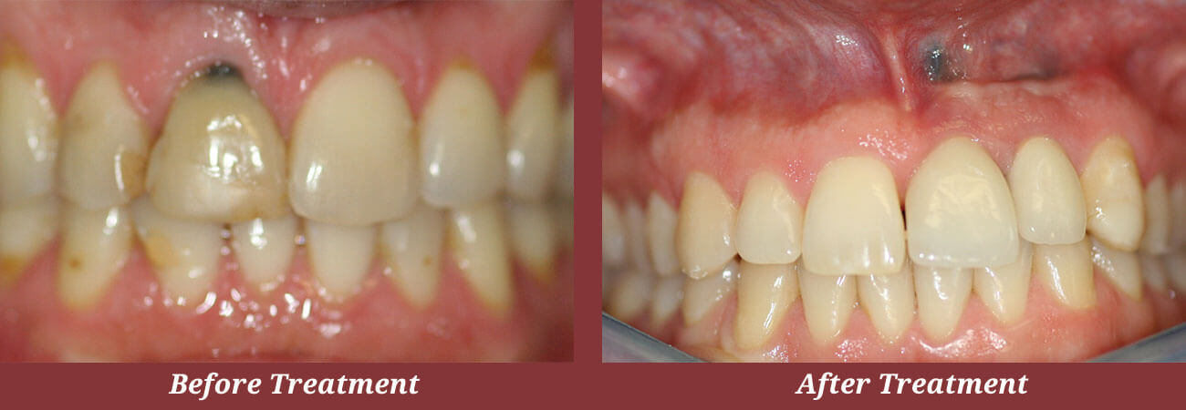 Before & After Dental Implants in Carlisle