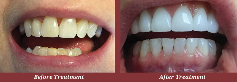 Before & After Teeth Whitening in Carlisle
