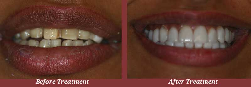 Before & After Veneers in Carlisle, MA