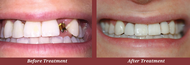 Before & After Dental Implants in Carlisle, MA