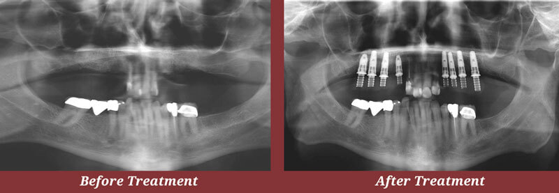 Guided Implant Placement X-rays